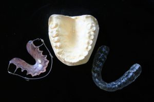 Dental Guards in Jacksonville FL